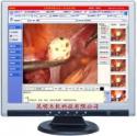 宫腔镜影像系统工作站图片